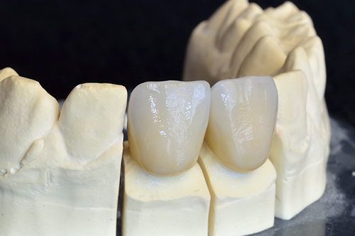 Dental Crowns West University