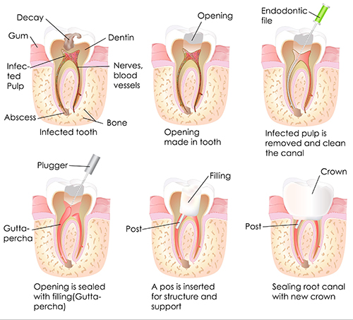 West University Root Canal