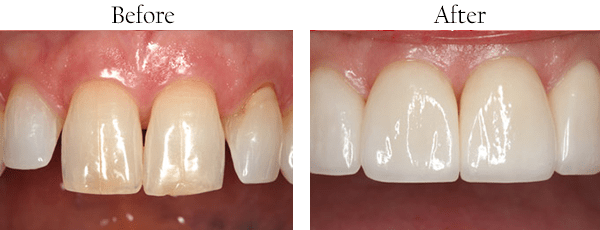 Bellaire dental images
