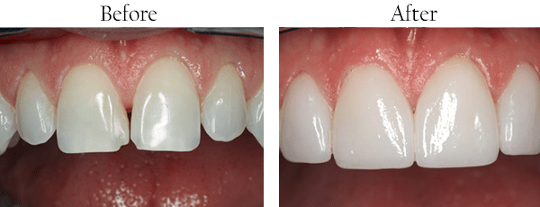 River Oaks Dental Images